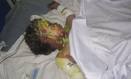 Injured Afghan Child from Drone Attack
